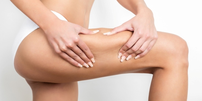 Cellulite Treatment – Home Based Treatments