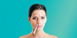 Home Remedies For Acne Scar